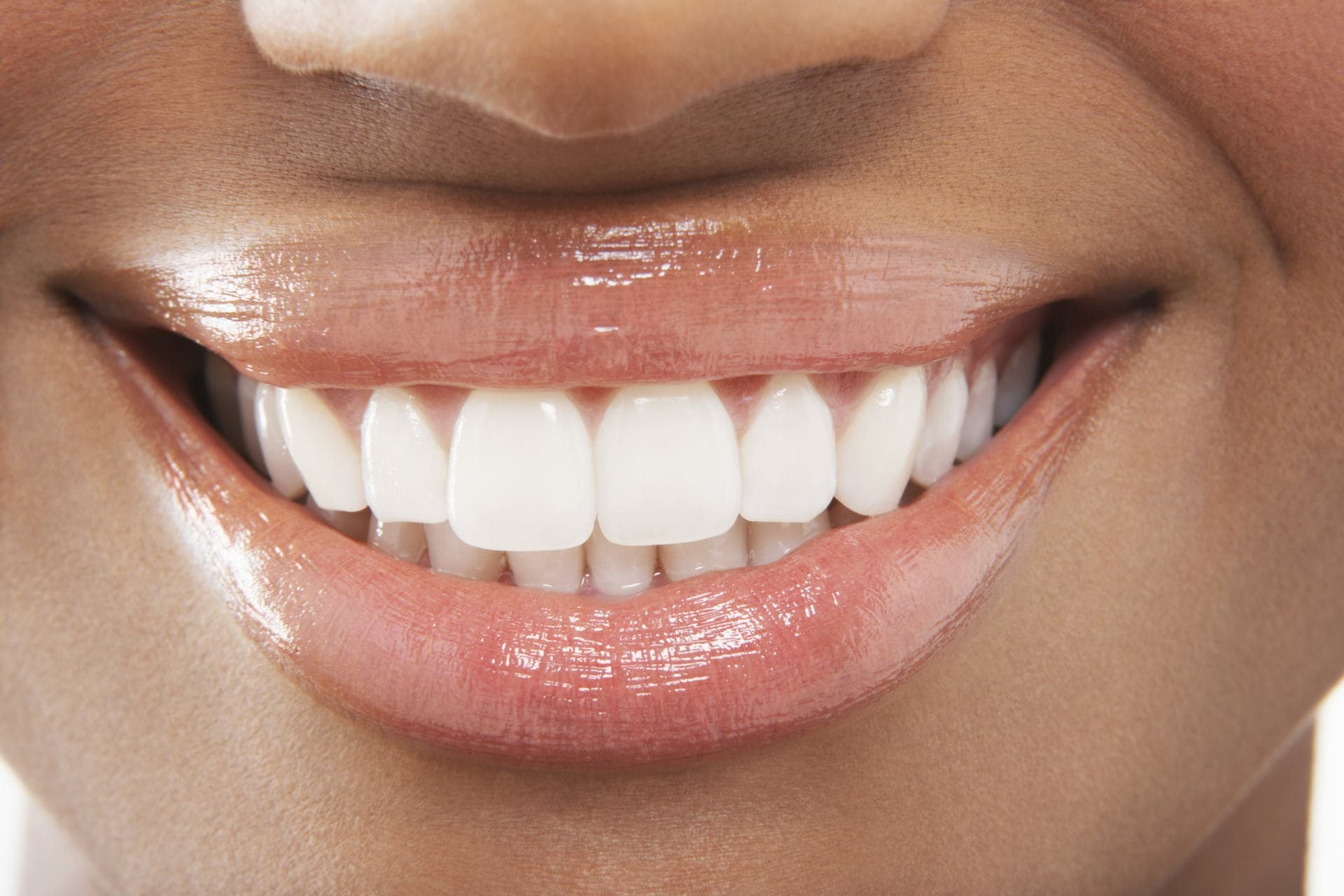Ways To Improve Your Smile
